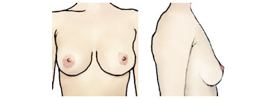 take out brand breast enhancers