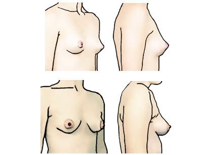 Boob chart shape
