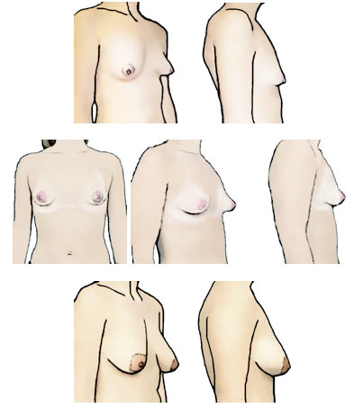 Different kinds of tits #4