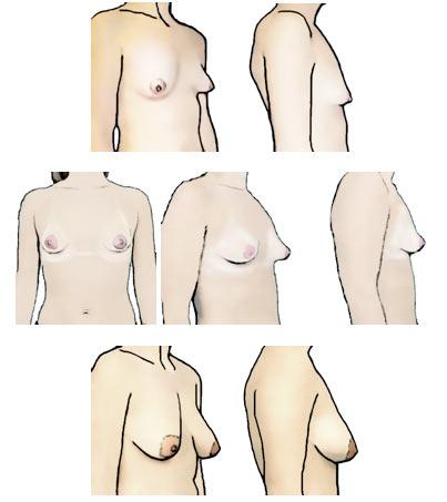 Breast implant - Wikipedia
