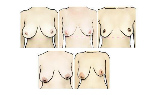 Clip hot nude