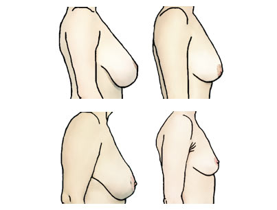 1125ed261f Settled breasts in profile have dropped so that the nipple is above the  breast crease line